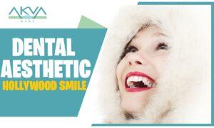 Dental Aesthetic – Hollywood Smile